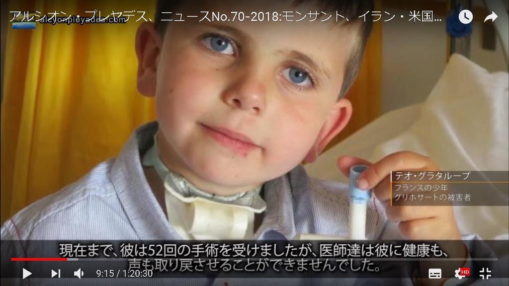 グリホサート被害者少年