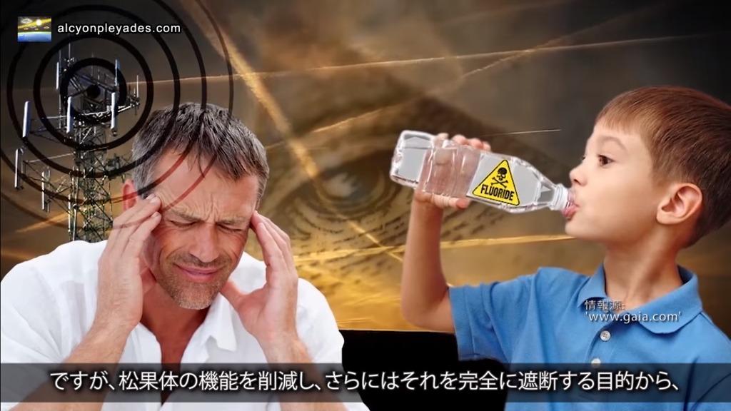 松果体 タワー フッ素水