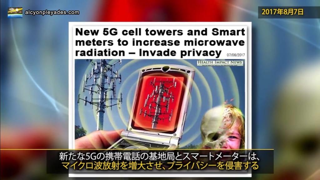 5Gマイクロ波頭蓋骨APN66
