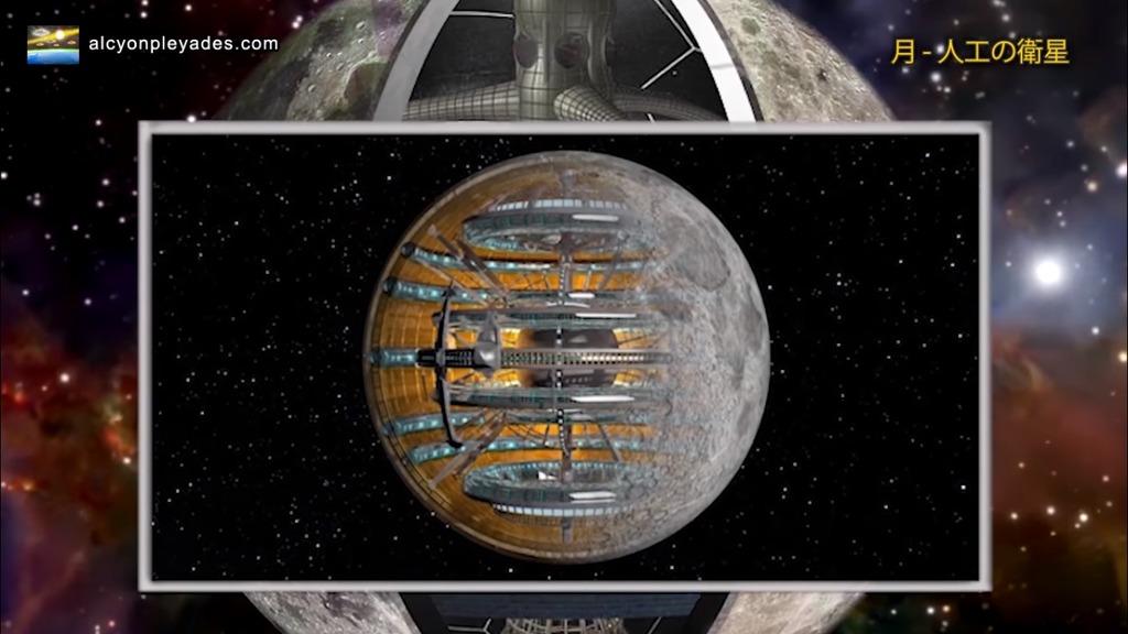 月 人工内部構造