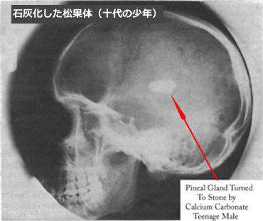 松果体石灰化 pineal-gland-calcification