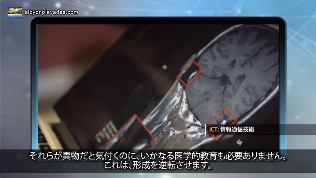 インプラント脳 APN71