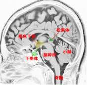 松果体 MRI