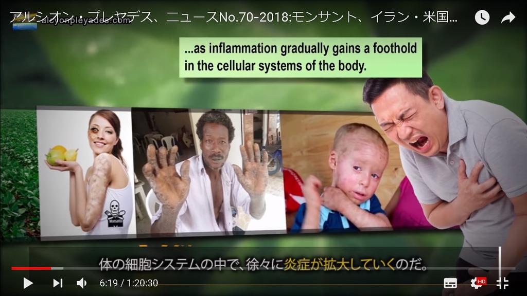 グリホサート炎症 APN70