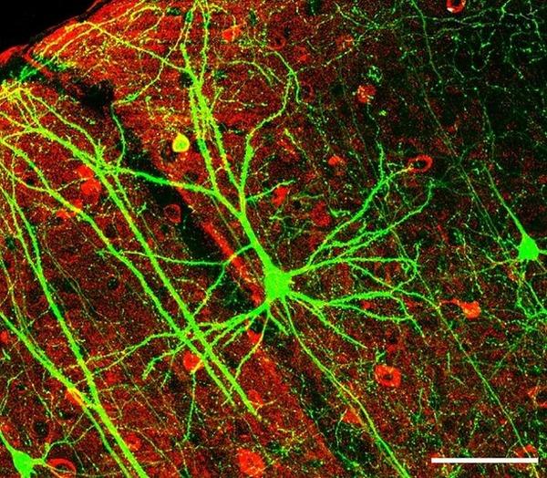 neuron8