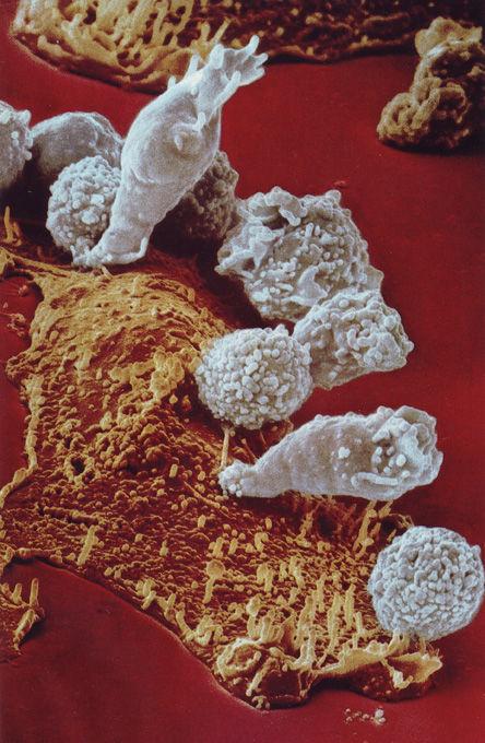 がん細胞を攻撃するキラーT2