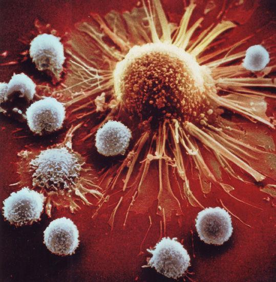 がん細胞を攻撃するキラーT