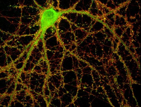 neuron5