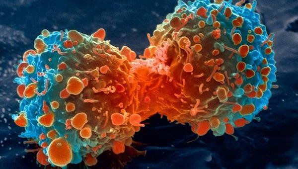 がん細胞3
