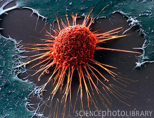 がん細胞4