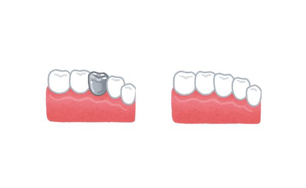 虫歯のかぶせ、銀歯にするか、七万のセラミックにするか迷う