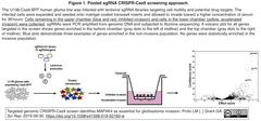 glioblastoma 1