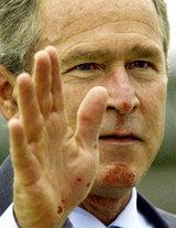 ケガした後のブッシュ大統領