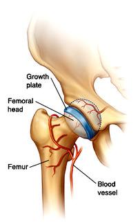 femoral head(大腿骨頭)