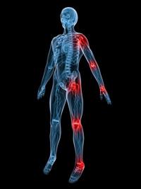 多発性骨壊死の痛みの及ぶ範囲