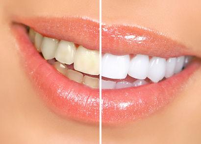 某・人気実況者が歯のホワイトニングを行った結果www