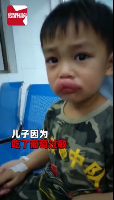 葡萄アレルギー1