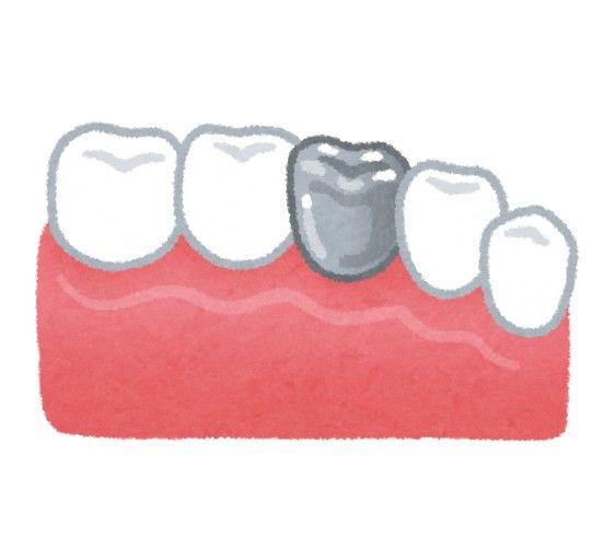 本当は怖い歯の治療…銀歯を入れるのは日本人だけ リスクをよく理解する必要も