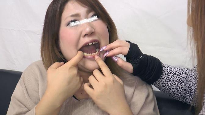 由真の崩壊歯 (3)