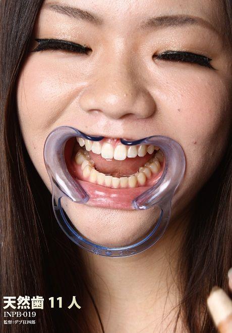 INPB-019-天然歯11人 - コピー