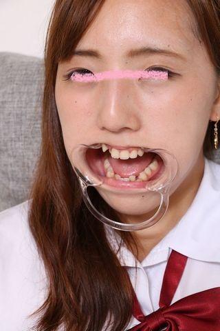 亜美の歯 (2)
