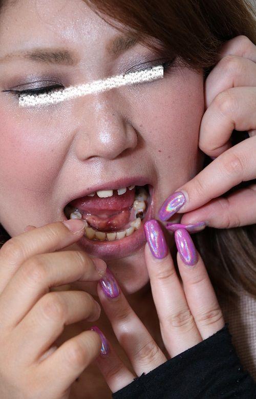 由真の崩壊歯 (4)
