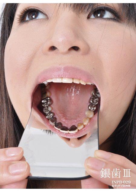 INPB-029-銀歯3-450
