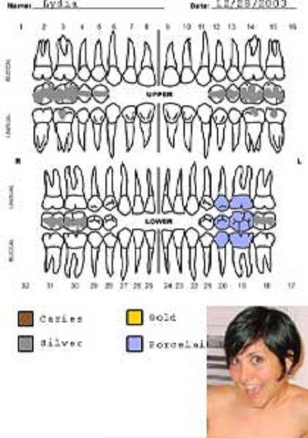 リディアの歯 (1)