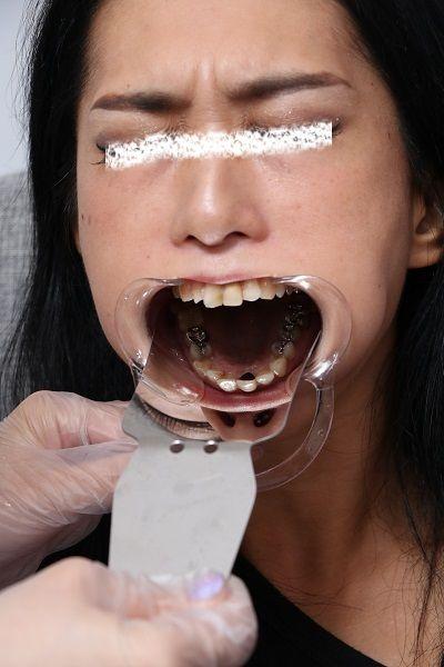 hikaruさんの歯 (1)