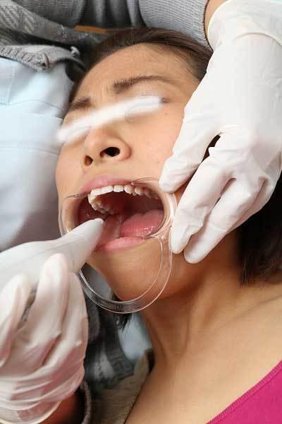 亜理紗の歯 (3)