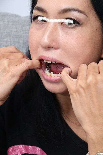 hikaruさんの歯 (2)