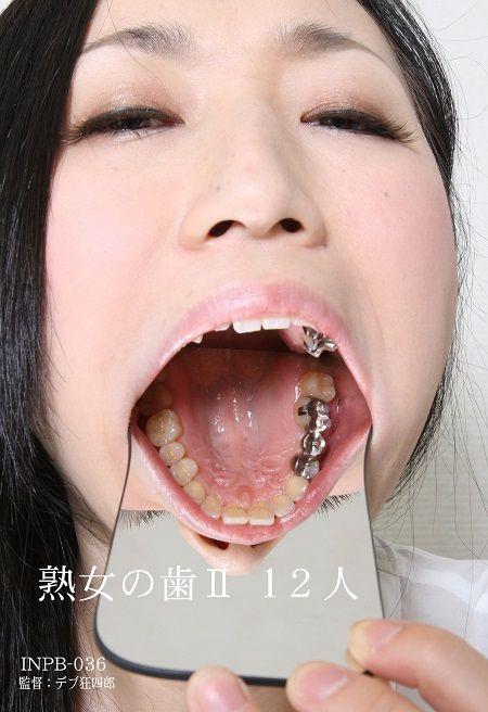 INPB_036歯A