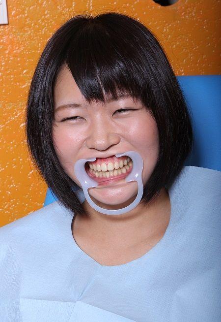 いい歯の日_2 (1)