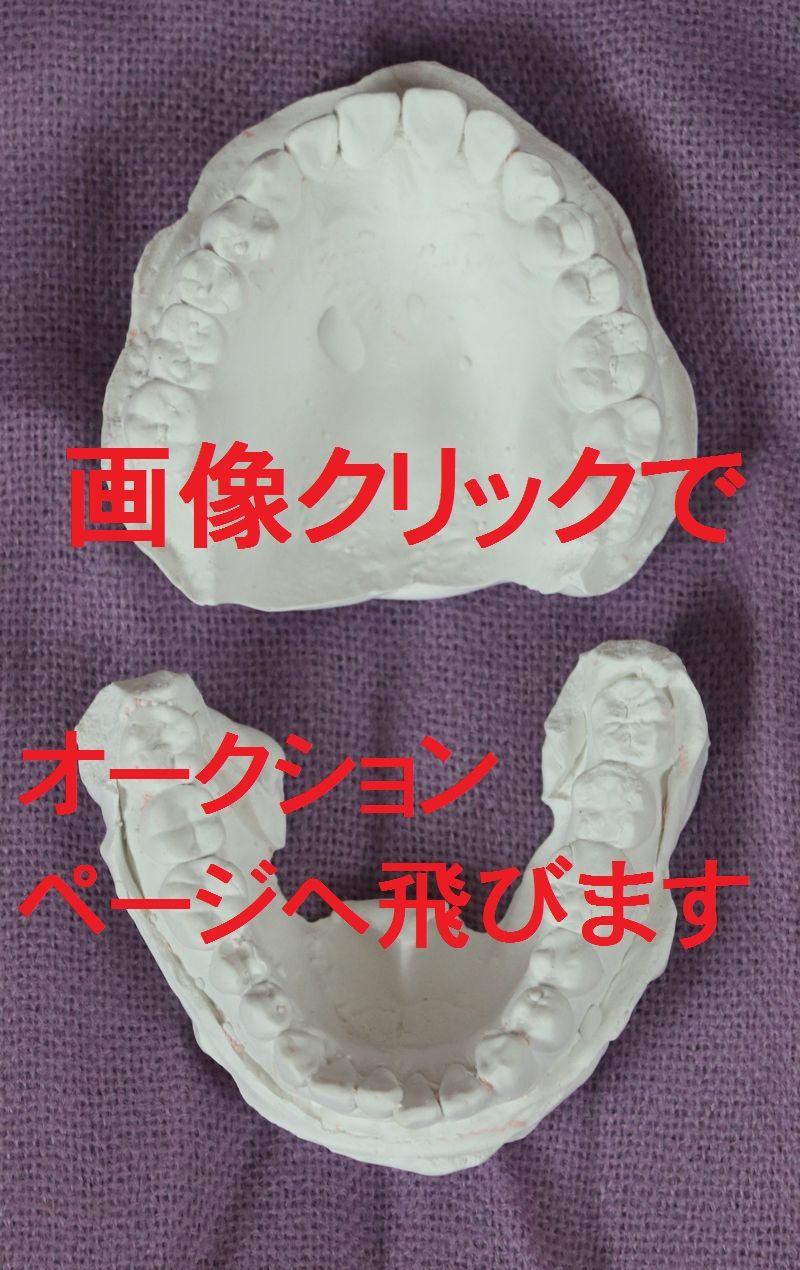 志穂歯型 (1)