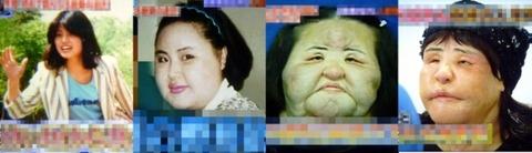 整形後の顔、屑チョンにしては見られるほうですねwwwww