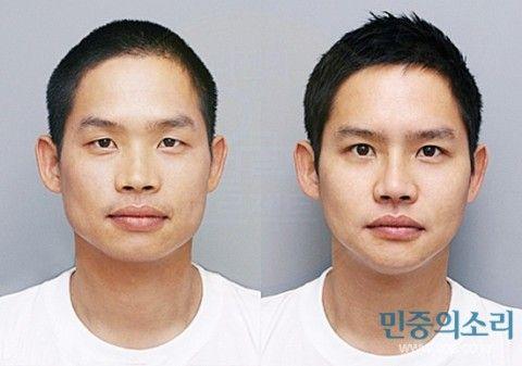 バ韓国の軍病院で整形手術を受けるケースが急増
