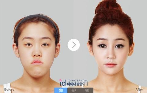 バ韓国には獣医と顔面工事屋しかいません