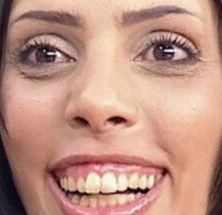 笑った時に歯茎見えるやつwwwwwwwwwwww