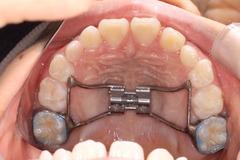 はるき201202歯