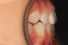 大森術後歯
