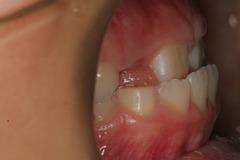 大森術前歯