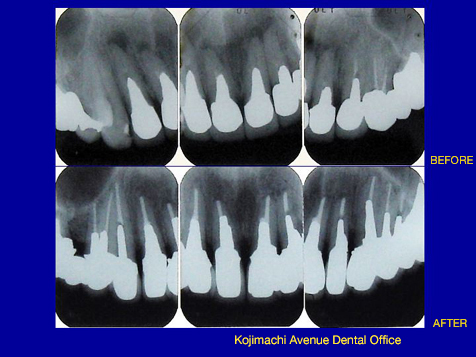 上下6前歯比較 X-ray
