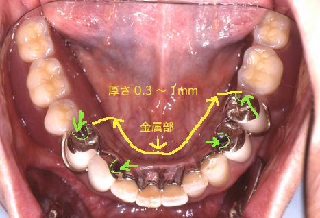 義歯解説図