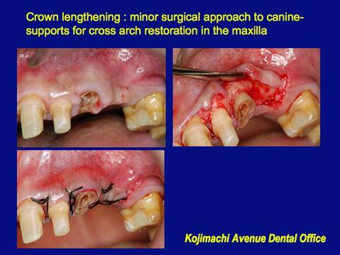 23の歯冠長伸展術