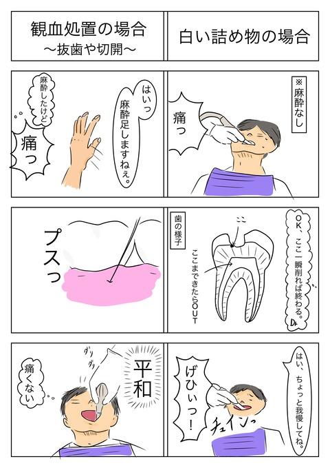歯科あるある2