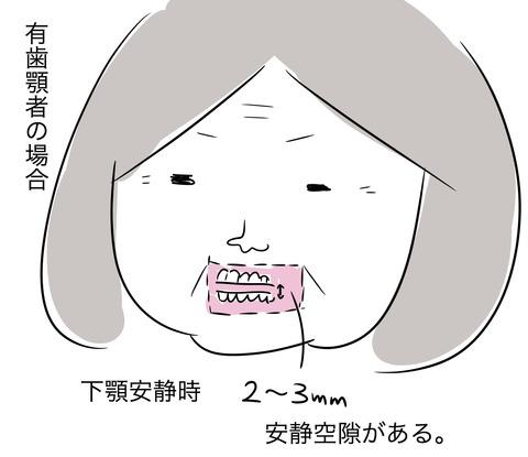 義歯の咬合採得2〜DHへの道192〜