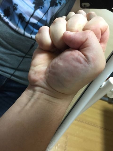 【画像あり】ワイより手の平厚いやつおる?(強握力)