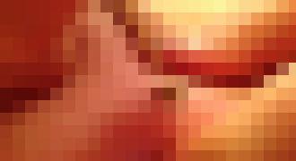【閲覧注意】25年間も放置していた巨大ニキビの中身を取り出す映像