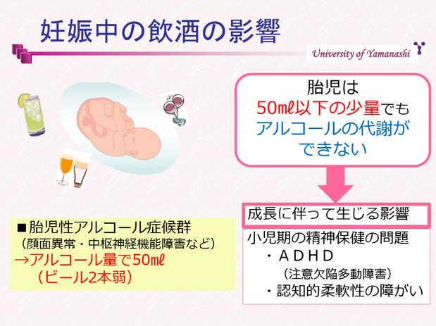 妊婦と飲酒