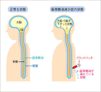 脳脊髄液減少症とブラッドパッチ療法